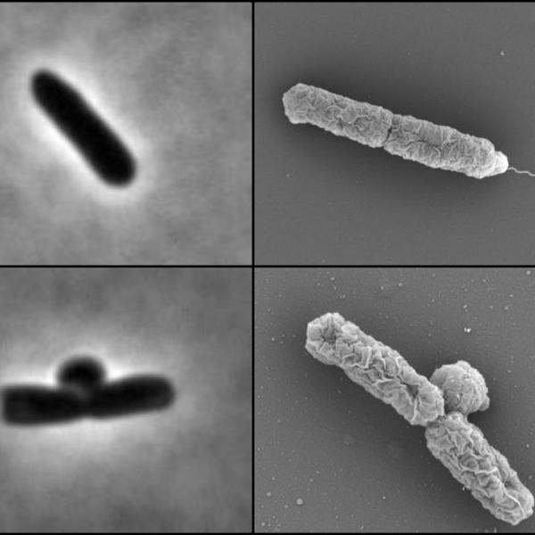 Specialist enzymes make E. coli antibiotic resistant at low pH