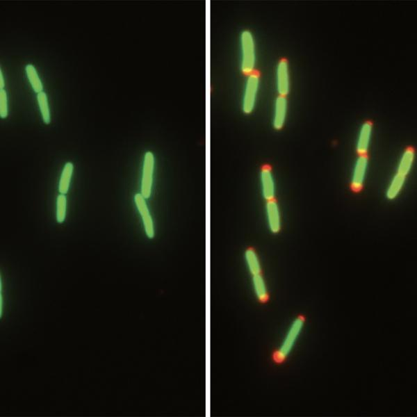 Shrinking to survive: Bacteria adapt to a lifestyle in flux